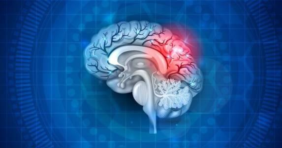 سندروم بعد از ضربه مغزی (PCS) چیست؟