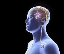 تحریک عمقی مغز (DBS)